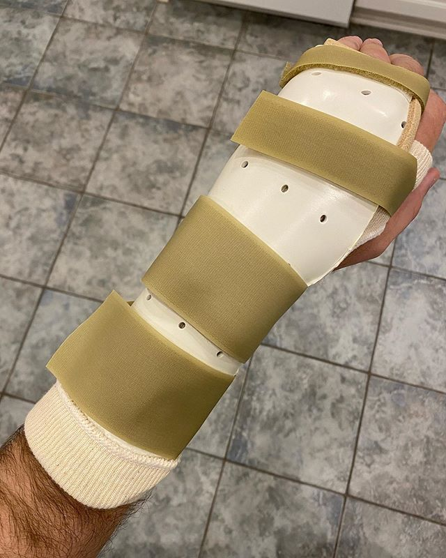 While I was in Israel I took a bad spill in the archaeological remains of the palace of Herod Agrippa II. I knew at the time that I dislocated a finger but found out today that I also fractured my hand in two places and tore a ligament. Will have surgery next Wednesday. #travel #israel